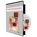Il trattamento dell'alveolo post-estrattivo